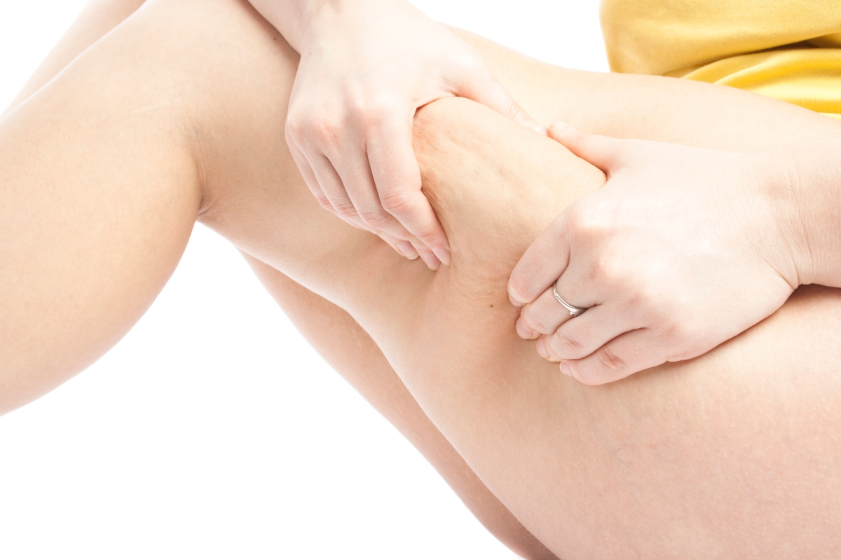 Got Cellulite? 5 Ways To Reduce TheAppearance